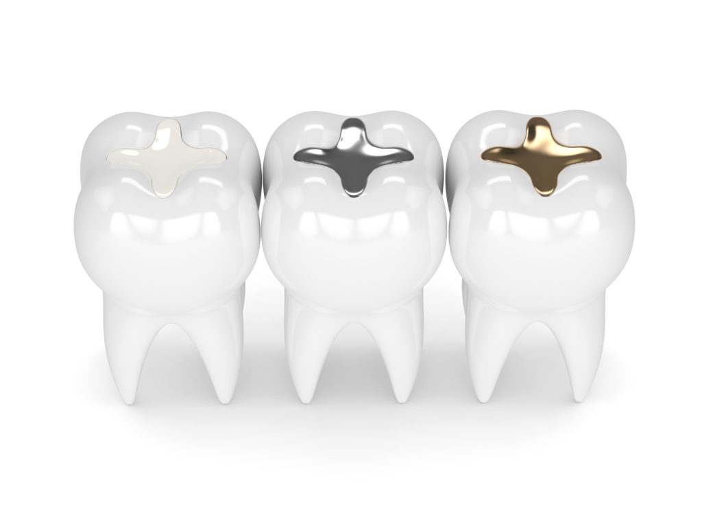 White, silver, and gold dental fillings